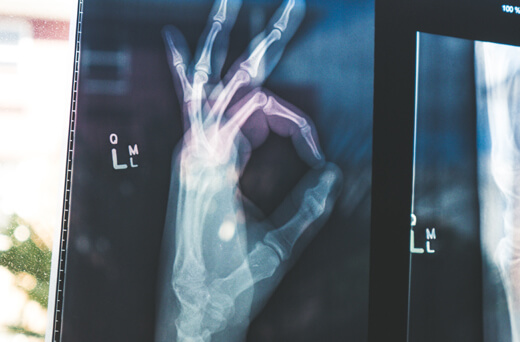 X-ray film of a hand, giving the A-Ok sign